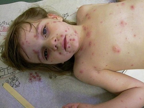 What should children with chickenpox eat & what is the best diet?  What medicine to quickly cure the disease?